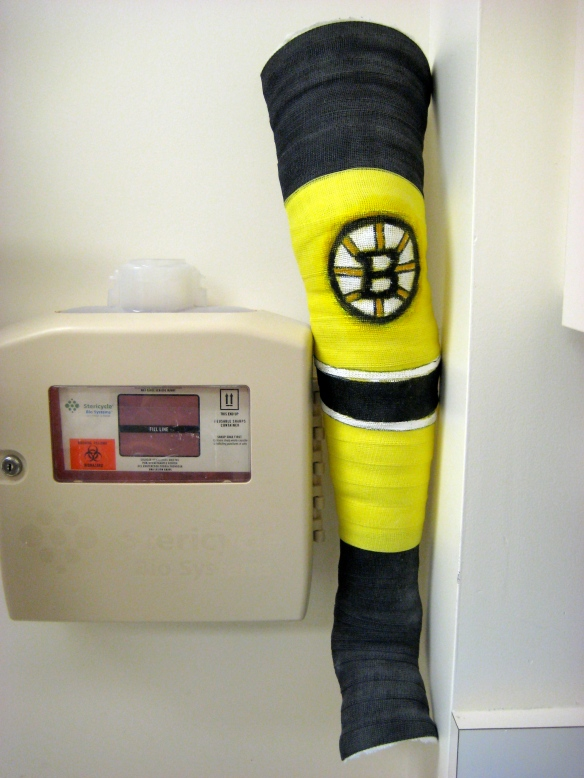 Wicked-sick full-leg cast of yellow and black fiberglass, imitating a Bruins ice hockey sock.